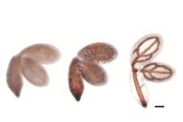 SAÇ DÖKÜLMESI - Bitkilerdeki Demir Miktarını Belirleyen Yeni Gen Keşfedildi