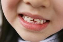 ESTETIK - 'Diş Ayrıklığı 16 Yaş Sonrasında Anormal'