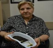 SAFRA KESESİ AMELİYATI - Safra Kesesinden 3 Bin 200 Taş Çıktı