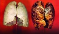 İLAÇ TEDAVİSİ - Sinsi Gelişen Hastalık Açıklaması Akciğer Kanseri
