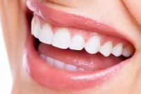 DİŞ SAĞLIĞI - Diş beyazlatma tedavisinde bilinmesi gerekenler