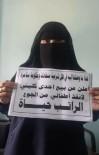 İÇ SAVAŞ - Yemenli Kadın Çocukları İçin Böbreğini Satışa Çıkarttı
