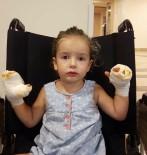 HELYUM GAZI - İçinde Yanıcı Gaz Bulunan Uçan Balon Küçük Kızı Yaktı