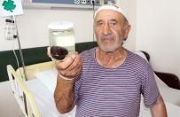 SERVERGAZI - Kasık Ağrısı Şikayeti İle Gitti, Mesanesinden Tek Parça Halinde 120 Gram Taş Çıktı