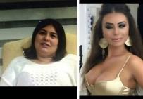 BOTOKS - Güzellik Uğruna 17 Kez Bıçak Altına Yatıp 100 Bin Lira Harcadı