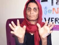 KADINA DAYAK - 17 yıl işkence gören kadının dramı