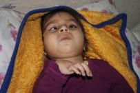 SÜLEYMANIYE - (Özel) Doğuştan Epilepsi Hastası 3 Yaşındaki Nazlı Yardım Elini Bekliyor