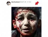YARALI ÇOCUK - PKK ödüllü fotoğrafı da yalanına alet etti