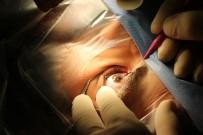 HIPERMETROP - Excimer Lazer İle Gözlüklerden 5 Dakikada Kurtulun
