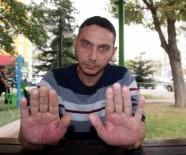 İŞ BAŞVURUSU - Elleri Sürekli Şişen Genç Yardım Eli Bekliyor