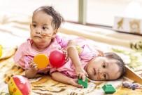 SAĞ VE SOL - Yapışık İkizler Avustralya'da Ameliyat Edilecek
