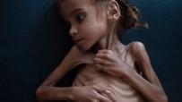 NEW YORK TIMES - Yemen İç Savaşının Sembolü Küçük Emel Hayatını Kaybetti