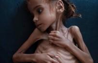 TIBBİ MALZEME - Yemen'de ülke nüfusunun yarısı yardıma muhtaç