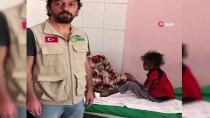 GIDA SIKINTISI - Yemen'de 21 Milyon İnsan Açlıkla Mücadele Ediyor