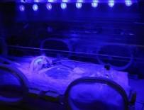 SAĞLIK PERSONELİ - İyi sağlık hizmeti milyonlarca prematüre bebeği yaşatabilir