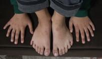 BİLİM ADAMI - 24 Parmaklı Çocuğun Ayakkabı Çilesi