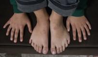 BİLİM ADAMI - Yazı Yazmak Ve Ayakkabı Giymek Onun İçin Çile