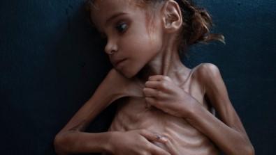 Yemen İçin Tek Yürek