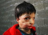 ESTETİK AMELİYAT - Esad'ın Varil Bombası 7 Yaşındaki Mahmud'u Yaktı