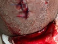 WEST HAM UNITED - Patrice Evra bacağının son halini paylaştı
