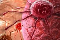 DÜNYA KANSER GÜNÜ - Doç. Dr. Ata Açıklaması 'Kanserin Tek Anahtarı 'Erken Teşhis' Değil'