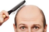 SAÇ EKİMİ - Uzmanlardan 'Saç Ektirmek Anlık Bir Karar Olmamalı' Uyarısı
