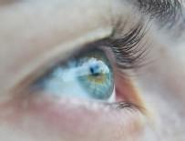 RADYOTERAPİ - Açık renkli gözlülerde göz kanseri riski daha yüksek