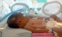 BEYİN KANAMASI - Kafatası Çatlayan 6 Günlük Bebek, Yaşam Savaşı Veriyor