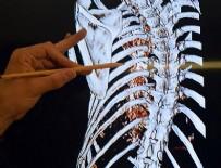 BAHÇEŞEHIR ÜNIVERSITESI - 'Sinir dokusu mühendisliği' hastalara umut olacak