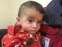CİLVEGÖZÜ SINIR KAPISI - Doğu Guta ablukasının simgesi Kerim bebek Türkiye'de