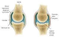 CHICAGO - Osteoartrit (Kireçlenme), yaşam kalitenizi düşürmesin