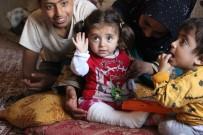 3 Yaşındaki Hülya'nın Kemikleri Cam Gibi Kırılıyor