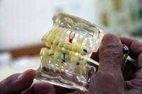 AMALGAM - Kırık Dolgu, Diş Kaybına Neden Olabilir