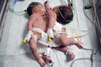 HÜSEYIN YıLMAZ - Konya'da Doğan Yapışık İkizler Ameliyatla Ayrıldı, Biri Kurtarılamadı