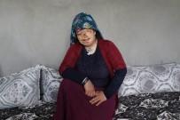 Yaşıtları Gelinlik Hayali Kuruyor, O Yanık Yüzünden Kurtulmak İstiyor