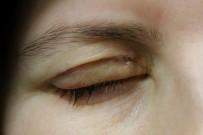 AHMET DEMİR - Göz Kapağını Kapatamayan Hastalar Altın İmplantla Tedavi Ediliyor
