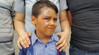 KAYNAR - Tatilden Dönen Minik Efe'nin Yüzüne Kaynar Su Döküldü