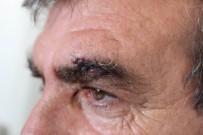 ESNAF VE SANATKARLAR ODASı - Antalya'da Yolcunun Saldırdığı Şoförün Kaşına 4, Dudağına 3 Dikiş Atıldı
