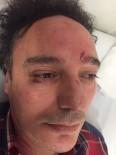 CEVDET ERDÖL - Ümraniye'de Doktora Saldırı