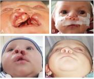 PATENT - Diş Hekimliği Fakültesinde Yarık Damak Dudak Tedavilerine Başlandı