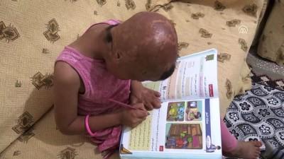 7 Yaşındaki Evin'in Geçirdiği 93 Ameliyat Savaşın İzlerini Silemedi