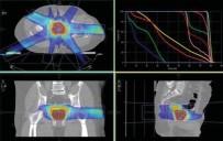 RADYOTERAPİ - Prof. Dr. Yavuz Açıklaması 'Prostat Kanserine Işınla Hızlı Tedavide Avantajlı Sonuçlar Elde Edilebiliyor'