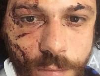 HALDUN DORMEN - Kadıköy'de oyuncuya şok saldırı! Canını zor kurtardı