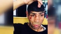 ENGELLİ GENÇ - Zihinsel Engelli Gence Bıçaklı Saldırı