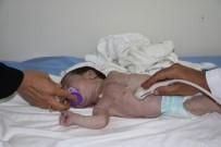 HÜSEYIN YıLDıZ - (Özel) 44 Günlük Bebeğin Kalbi Sağda Atıyor
