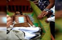 ARAKANLI MÜSLÜMANLAR - Karın Ağrısıyla Gittiği Hastanede Tüm Organları Çalındı