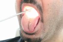 MEHMET AKDAĞ - Geçmeyen Ağız Kokusu, Dil Kanseri Belirtisi Olabilir