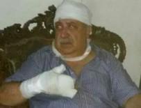 MİHRAÇ URAL - Mihraç Ural yaralandı