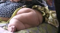 KANSER TEDAVİSİ - Kanseri Yendi Obeziteyi De Yenmek İstiyor