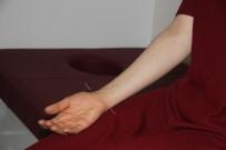 İLAÇ TEDAVİSİ - Isparta Şehir Hastanesi'nde Akupunktur İle İlaçsız Tedavi Dönemi